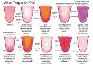 tongue-syndromes